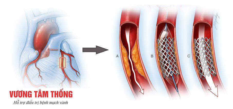 Nong mạch vành và đặt stent trong điều trị bệnh mạch vành